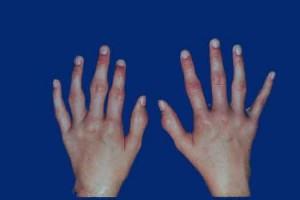 صورة الروماتويد , اعراض الروماتويد في اليد , علاج الروماتويد