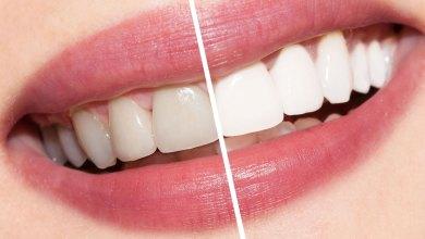 صورة استخدام بيكربونات الصوديوم لتبييض الاسنان