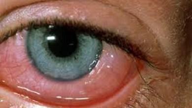 Photo of علاج حساسية العين بالأعشاب الطبية