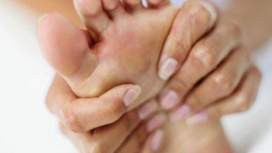 صورة أسباب ألم عقب القدم