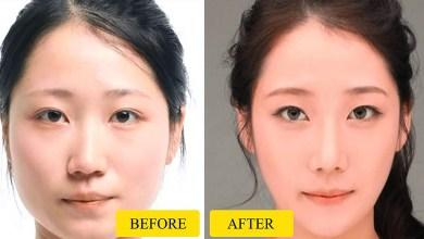 صورة كيفية تنحيف الوجه الممتلئ بالصور