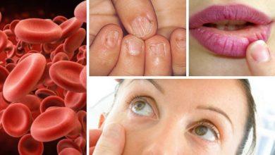 صورة علامات نقص الحديد في الدم
