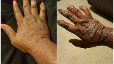 صورة علاج تورم واحمرار اليدين والرجلين بسبب نقش الحناء