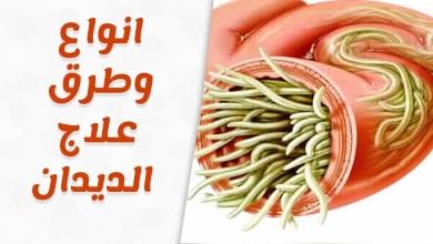 صورة علاج الديدان بالأعشاب