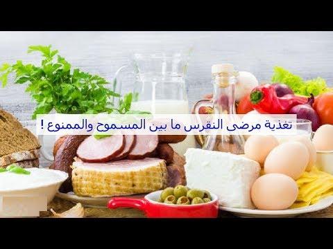 اطعمة لعلاج مرض النقرس .