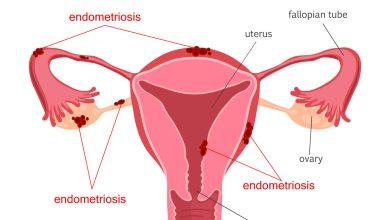 Photo of علاج بطانة الرحم المهاجرة واسباب تأخر الحمل