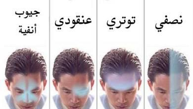 Photo of أسباب الصداع المستمر