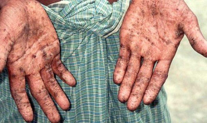 أعراض التسمم بالزرنيخ