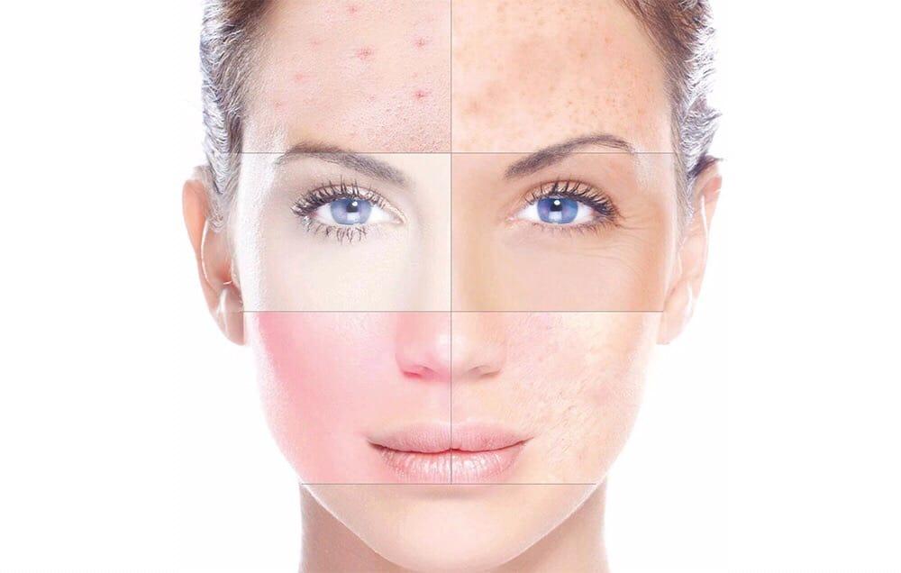 تقشير بشرة الوجه