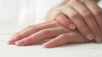 صورة أسباب وعلاج تشقق اليدين