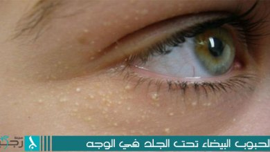 Photo of الحبوب البيضاء تحت الجلد في الوجه