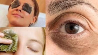 صورة فوائد الشاي للعين وكيفية استخدامه للتخلص من الهالات السوداء