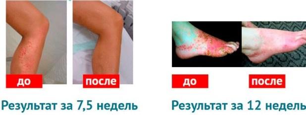 rekzemin от псориаза инструкция по применению