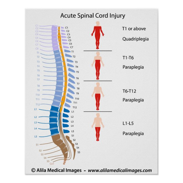 Spinal cord injury levels, labeled diagram poster | Zazzle