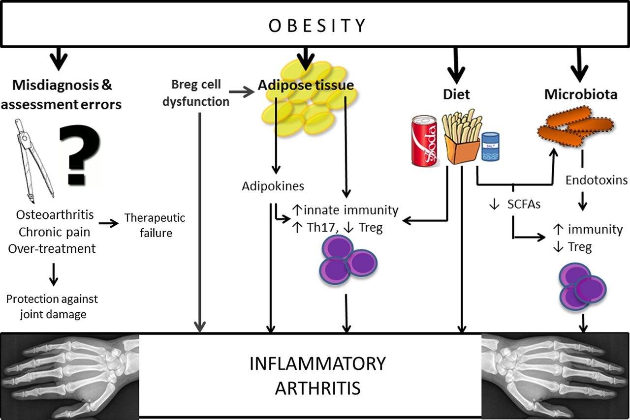 Obesity And Inflammatory Arthritis Impact On Occurrence Disease Characteristics And