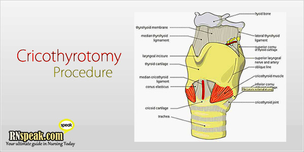 cricothyrotomy-procedure for nurses