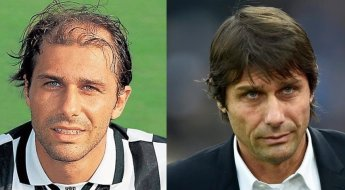 Antonio Conte's Hair Transplant