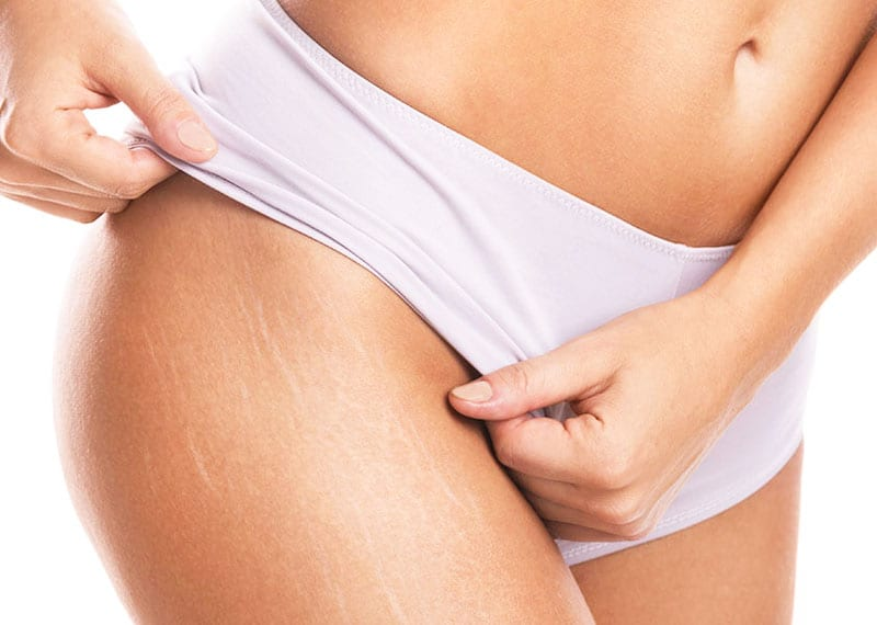 stretch marks removal tips