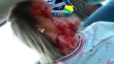 BRUTALIDADE: Ex-marido tenta matar mulher a golpes de barra de ferro, em Ji-Paraná