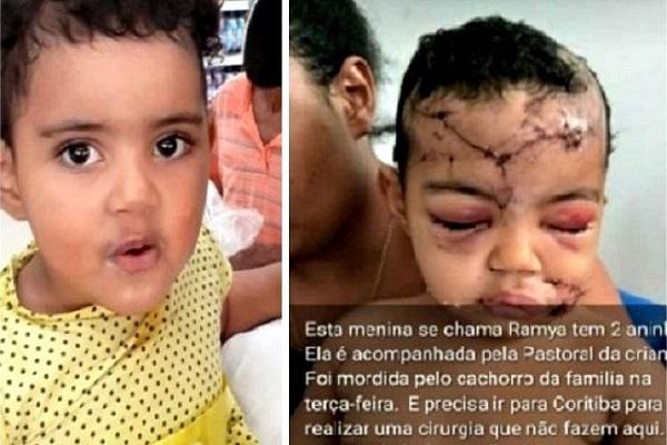 Bebê mordido por dois cães rottweiler em Rondônia precisa de ajuda