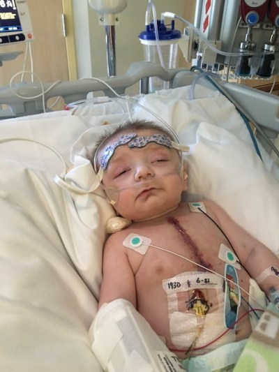 Kaison's open heart surgery for HLHS
