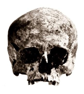 labbacallee skull