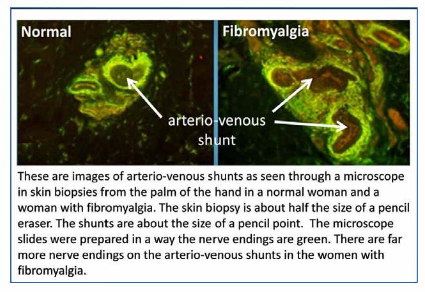 Nuevo estudio ratifica que existen causas biológicas en la Fibromialgia (3/3)