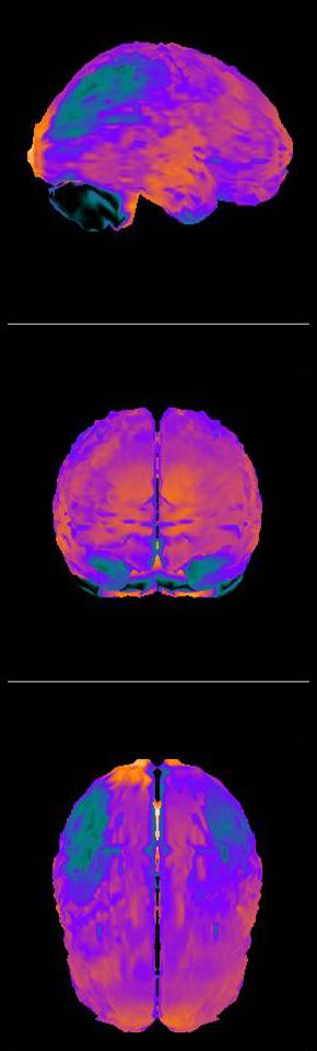 Evidencias diagnósticas mediante imagen en la Fibromialgia, frente a otras evidencias erróneas (3/4)