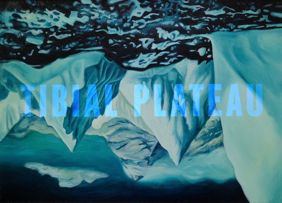 Tibial Plateau Rob Kettels