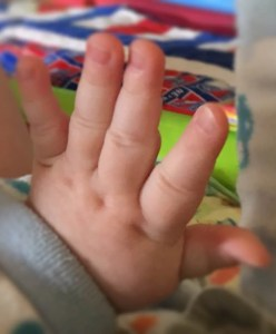 Asher's finger dimples