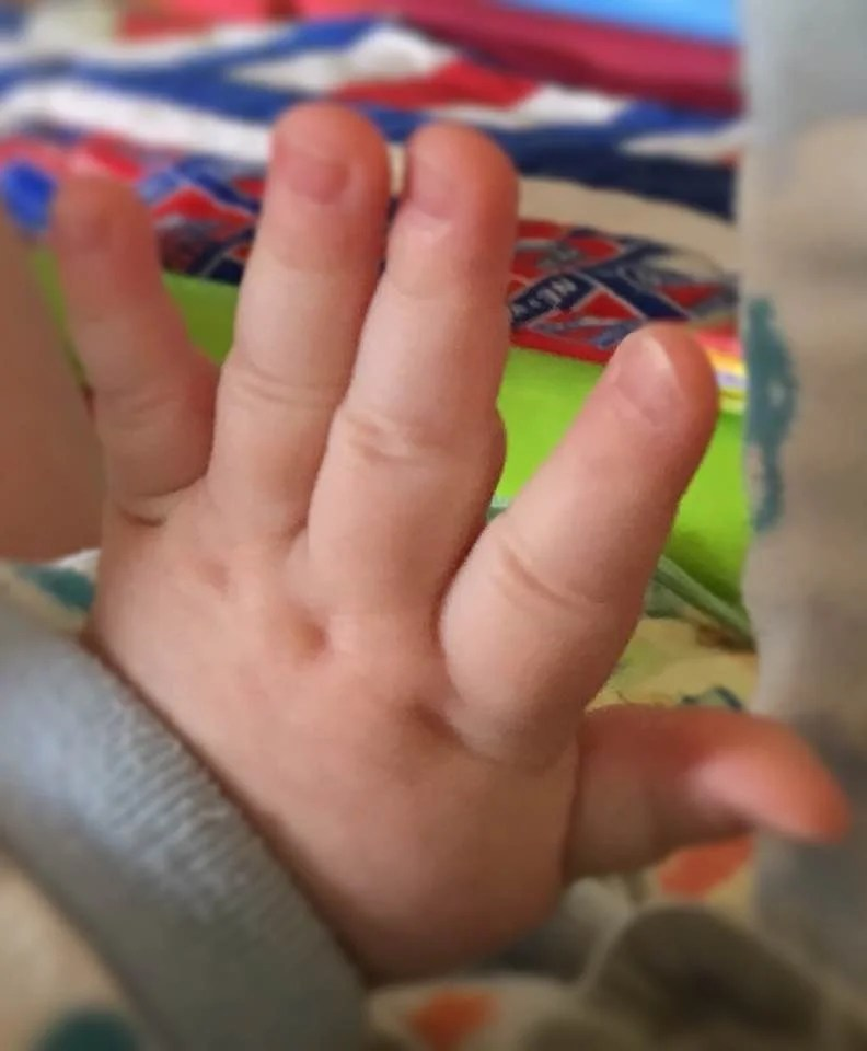 Asher's finger dimples