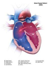 Atrial Septal Defect Anatomy