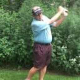 Robotic mitral valve surgery patient playing golf 2 weeks after surgery