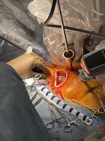 Robotic aortic valve replacement