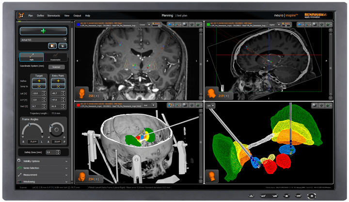 Brains trust: The impact of robotics on neurosurgery