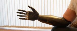 Bebionic3 är världens mest avancerade cyborghand