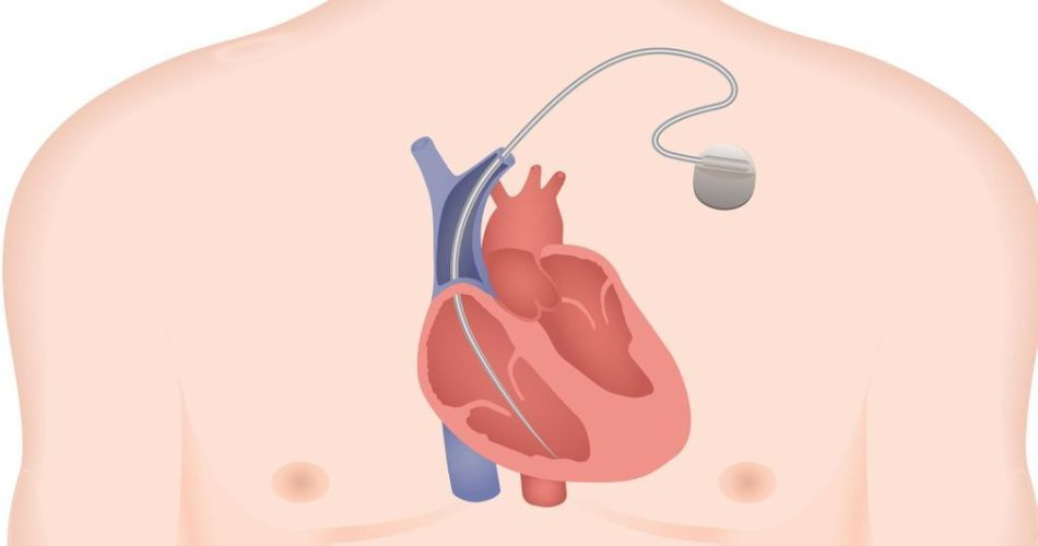 all-about-implantable-cardiac-defibrillators-(icds)