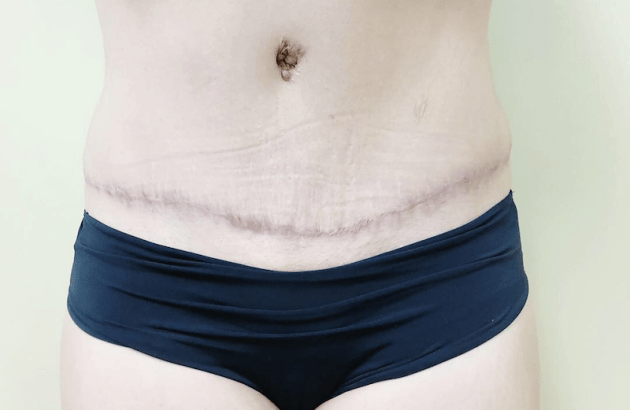 After Coolsculpting Cycles