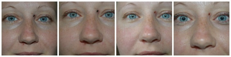 Mole Removal Healing 7