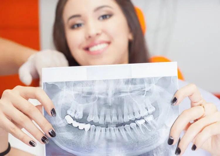 Woman with dental xrays