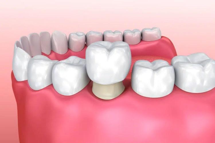 Dental crown restoration