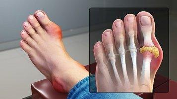 Gout Signs & Symptoms