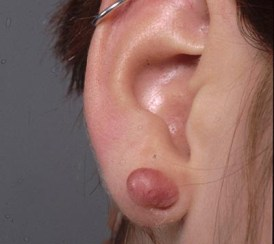 Lumps and Bumps - A keloid scar on a lobe