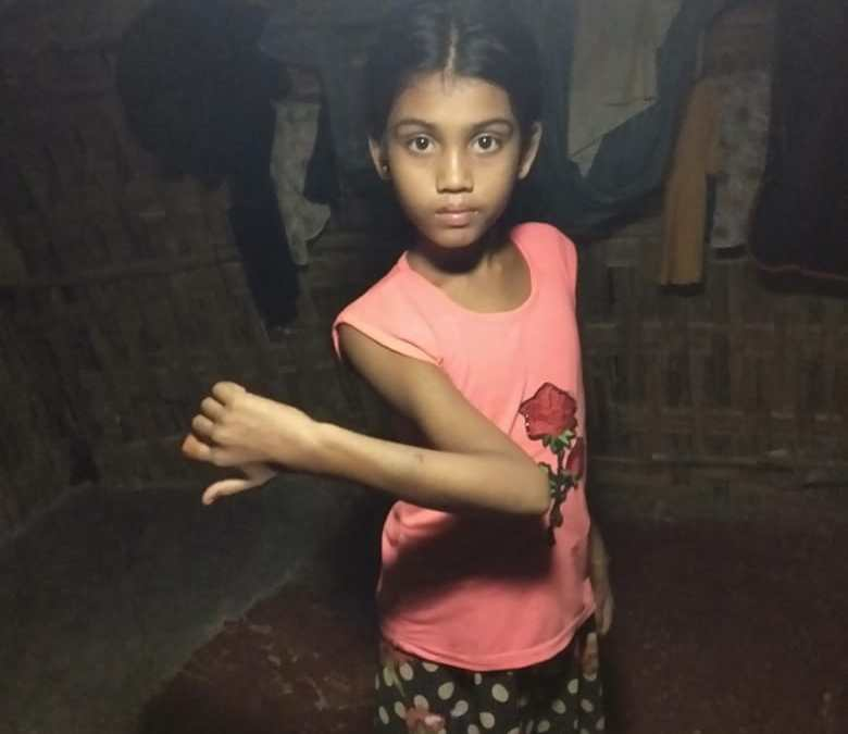An 8 years old Rohingya girl is seriously injured by a car accident