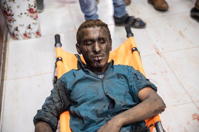 L'armée turque fait usage d'armes chimiques en Syrie