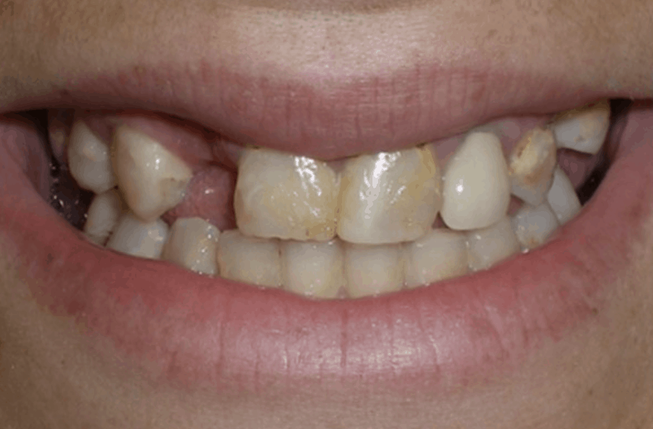 before dental bridge placement danbury ct
