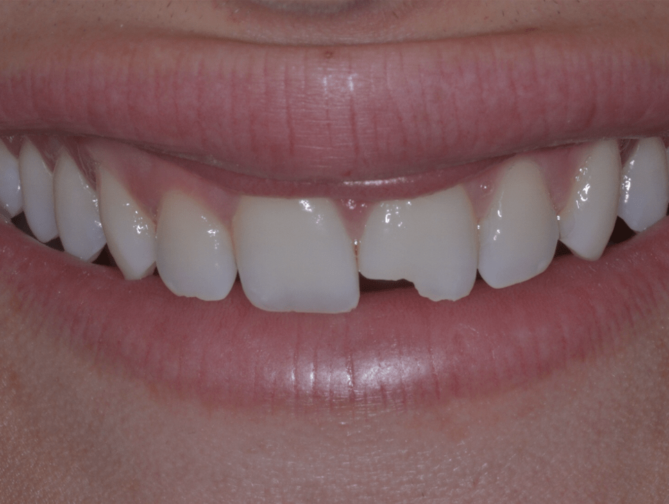 dental composite danbury ct