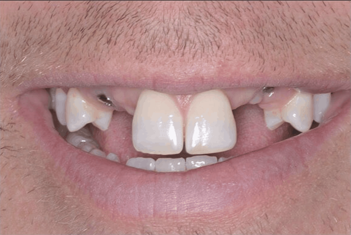 before dental implant crowns danbury