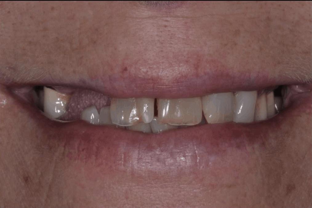 before dental implants danbury ct