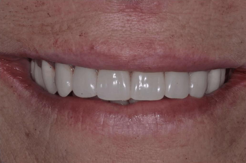 after dental implants danbury ct
